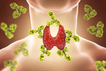 Sistema immunitario: le cause delle malattie autoimmuni e le